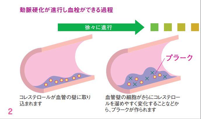 血管がつまって、脳梗塞・心筋梗塞をおこすまでの流れ1
